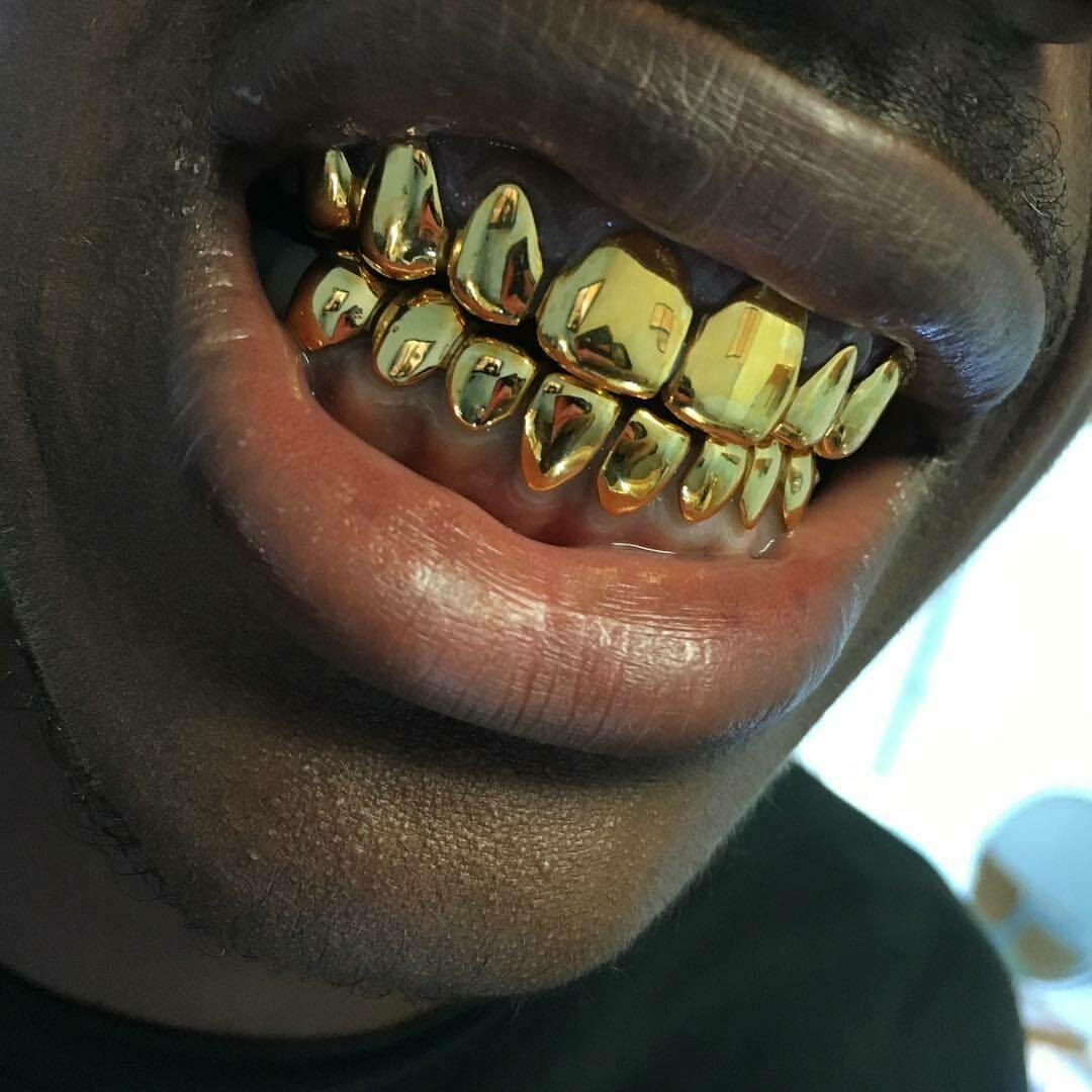 Non-Precious Gold Alloy (NPG) ($34 Per Tooth)