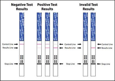 Urine Pregnancy Test Strip (Beta-hCG)