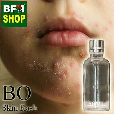 Blended Essential Oil (BO) - Skin Rash Essential Oil - 50ml
