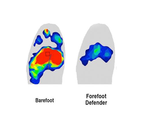 Forefoot Defender™