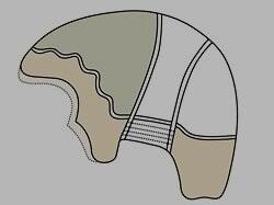 The ALX - 100 NI SKIN Front full cap men s hair replacement system
