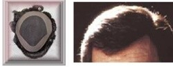 Award Winner GM5 1/8 Rolled Lace Front Hair Replacement system
