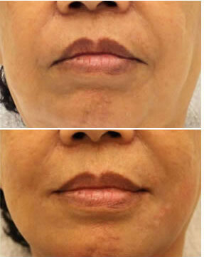 Sagging mouth corners - 'Sad Lips' (Botox)