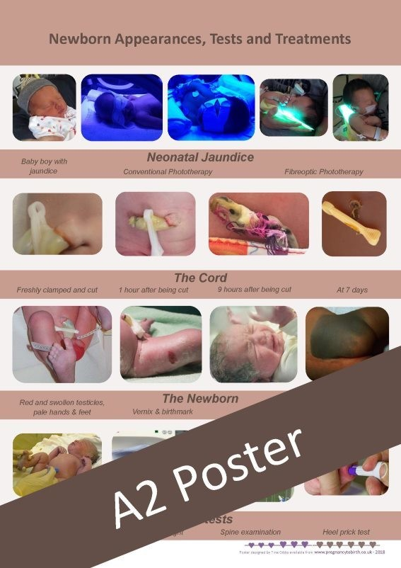 Newborn Appearances, Tests and Treatments - A2 poster