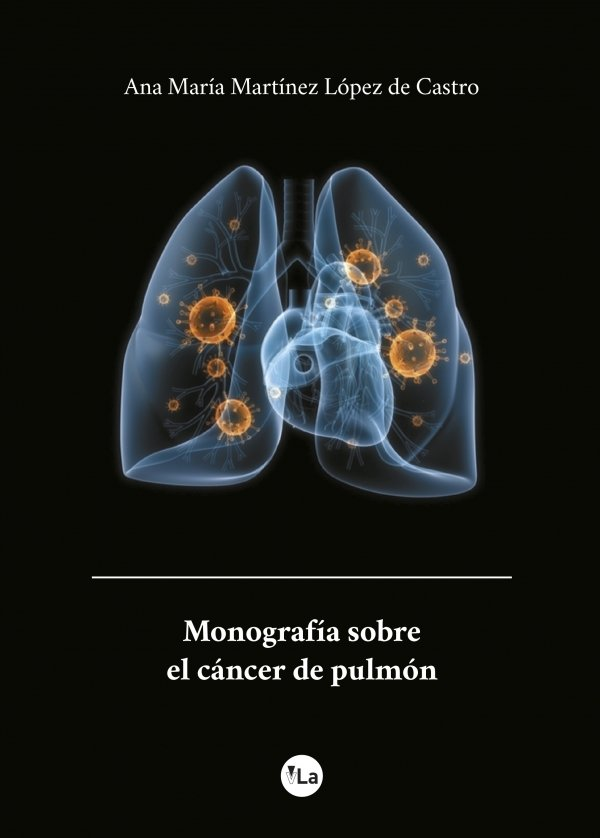 Monografía sobre el cáncer de pulmón