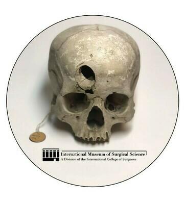Trephined Skull Sticker